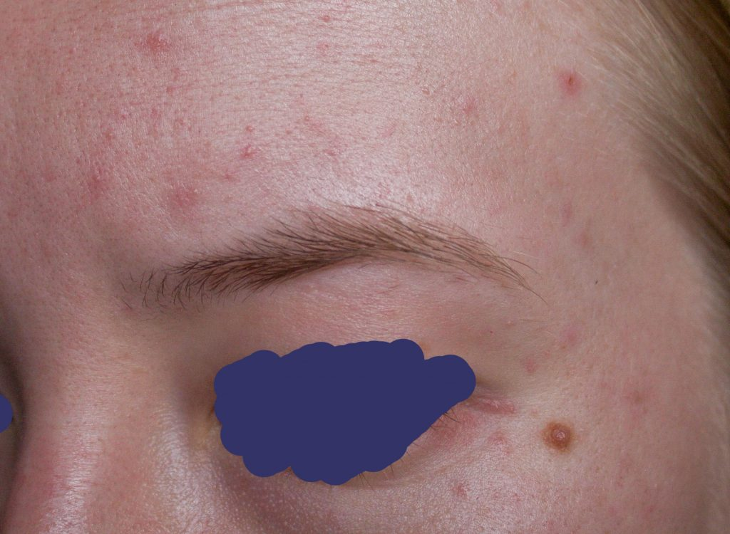 infection near eye