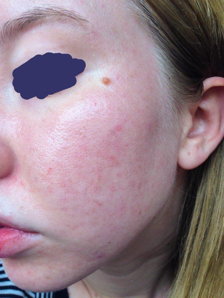 beginning of skin rash