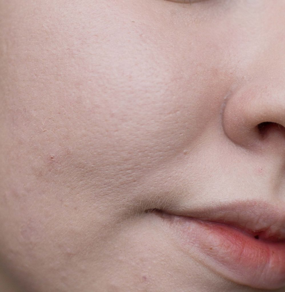 Pores and skin texture wearing The Ordinary Colours Serum Foundation