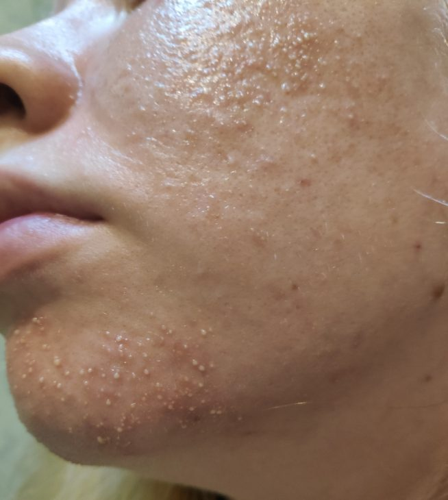 From Fungal Acne Folliculitis To Clear Skin With Pictures Skin Careless