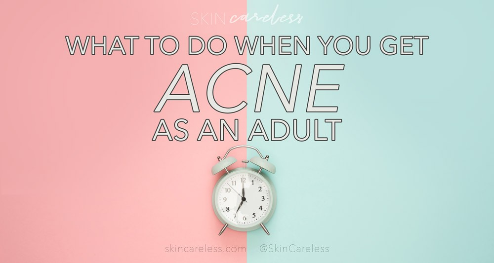 What to do when you get acne as an adult