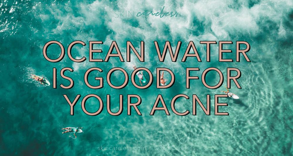 Ocean water is good for your acne