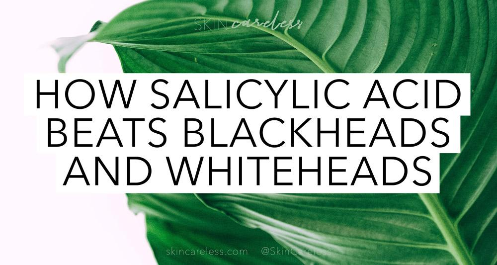 How salicylic acid beats blackheads and whiteheads