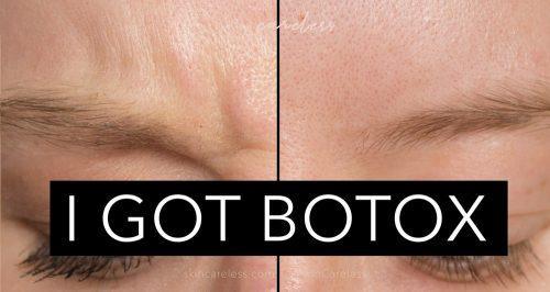 I got botox