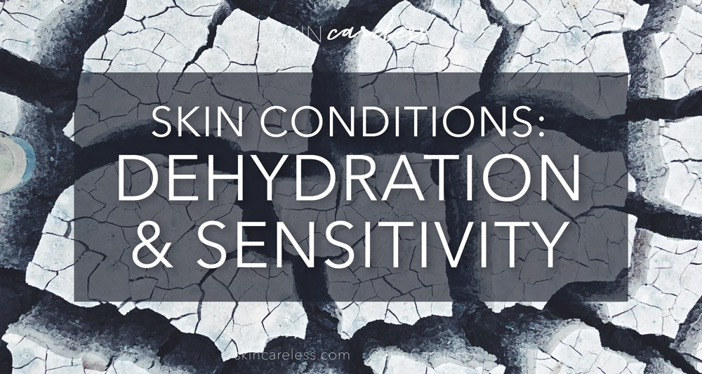 Skin conditions: dehydration & sensitivity