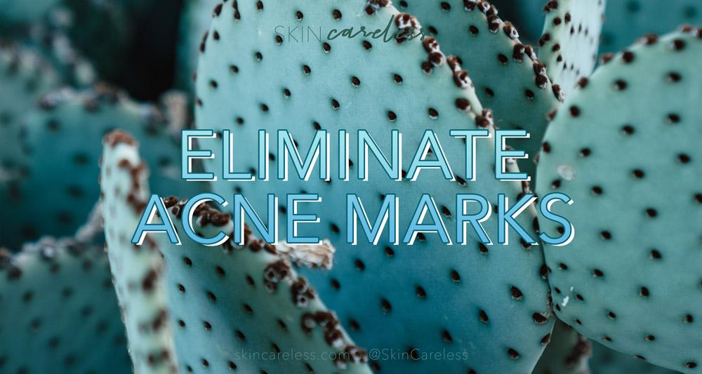 Eliminate acne marks