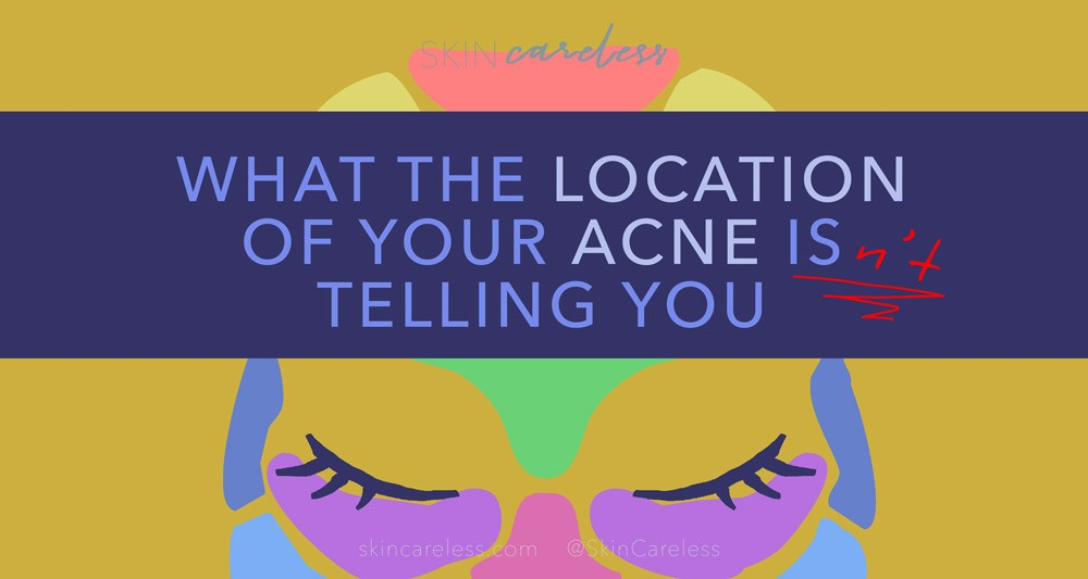 What the location of your acne isn't telling you