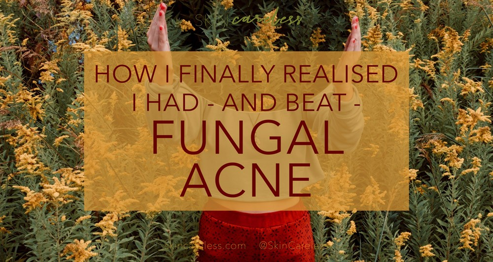 How I finally realised I had - and beat - fungal acne