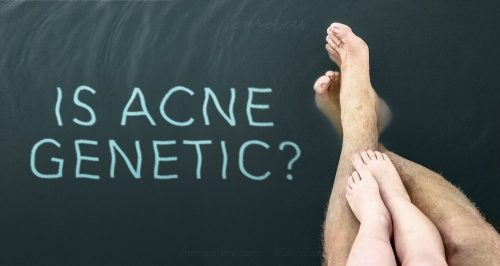 Is acne genetic?