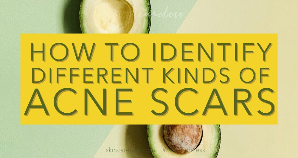 How to identify different kinds of acne scars