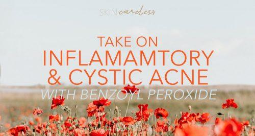 Take on inflammatory and cystic acne with benzoyl peroxide