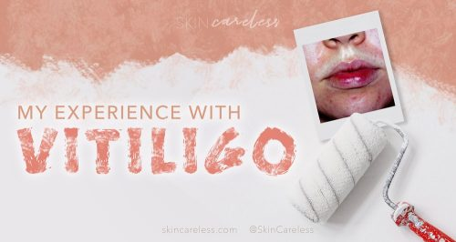 My experience with vitiligo