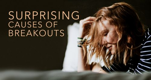 Surprising causes of breakouts