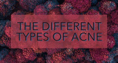 The different types of acne